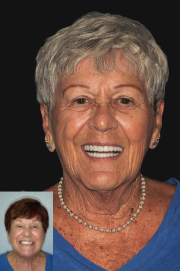 Patient before and after treatment at Revive Dental Implant Center
